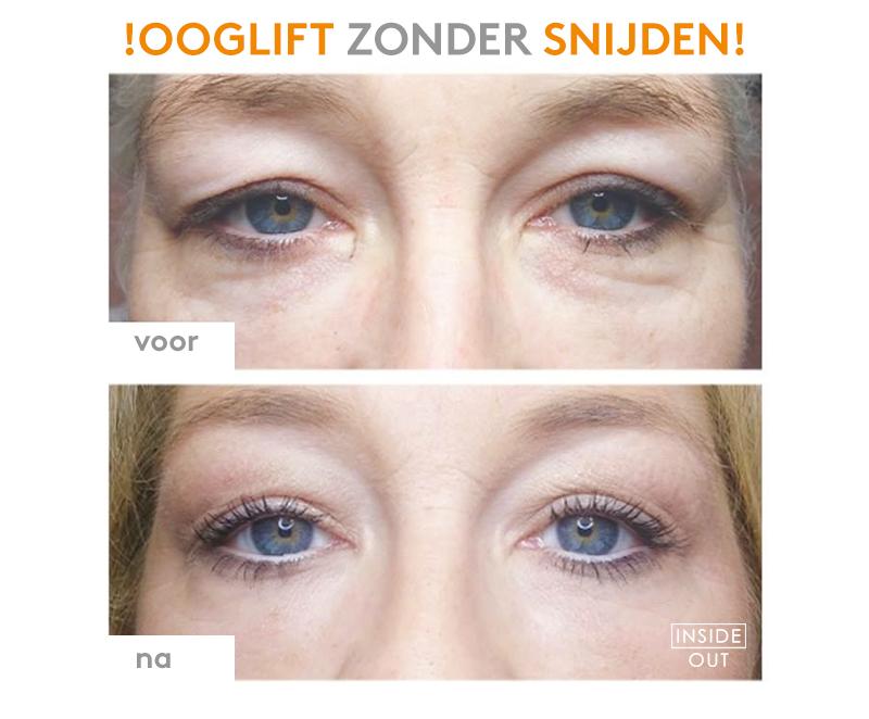 inside-out-kapellen-plasma-chirugie